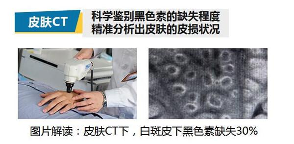 成都西部美国三维皮肤CT