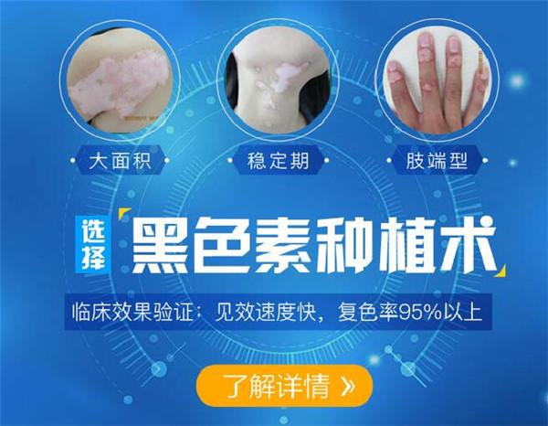 表皮移植术手术