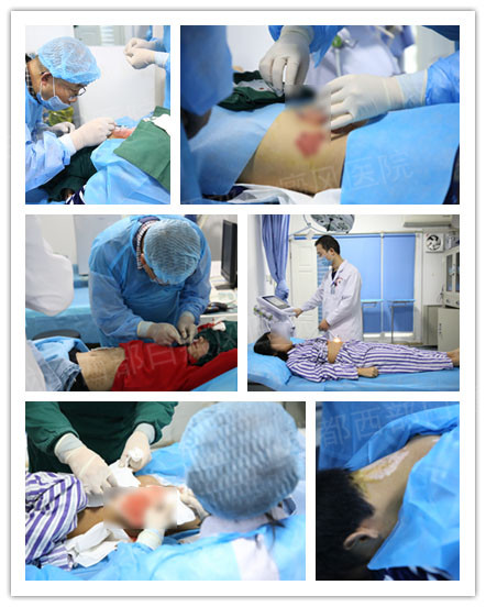 京蜀医院白癜风专家免费手术会诊