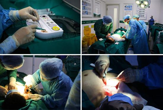 Recell手术直播